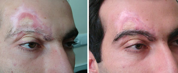 Before and after hair transplant — 750 grafts