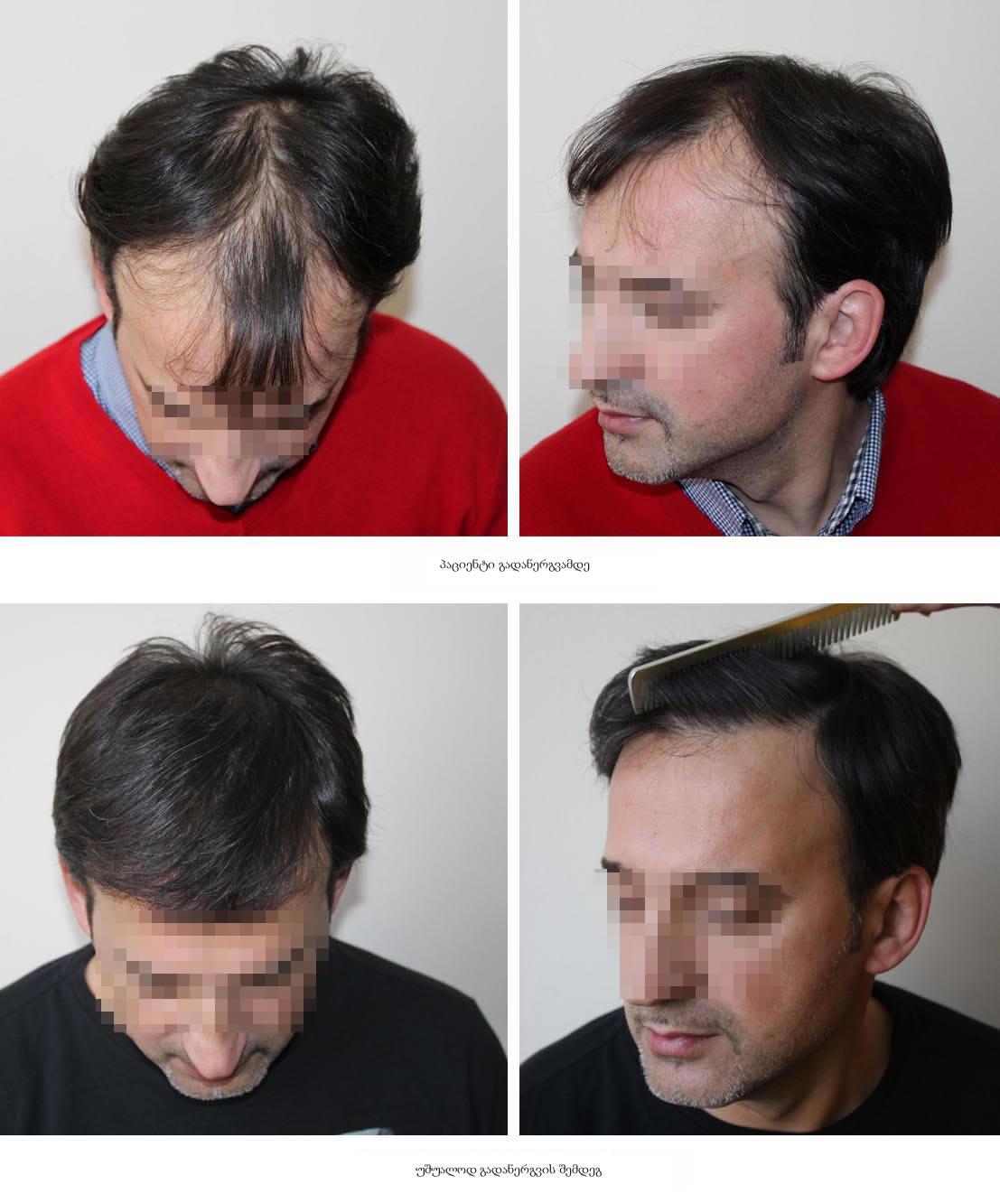 გრძელი თმის გადანერგვა