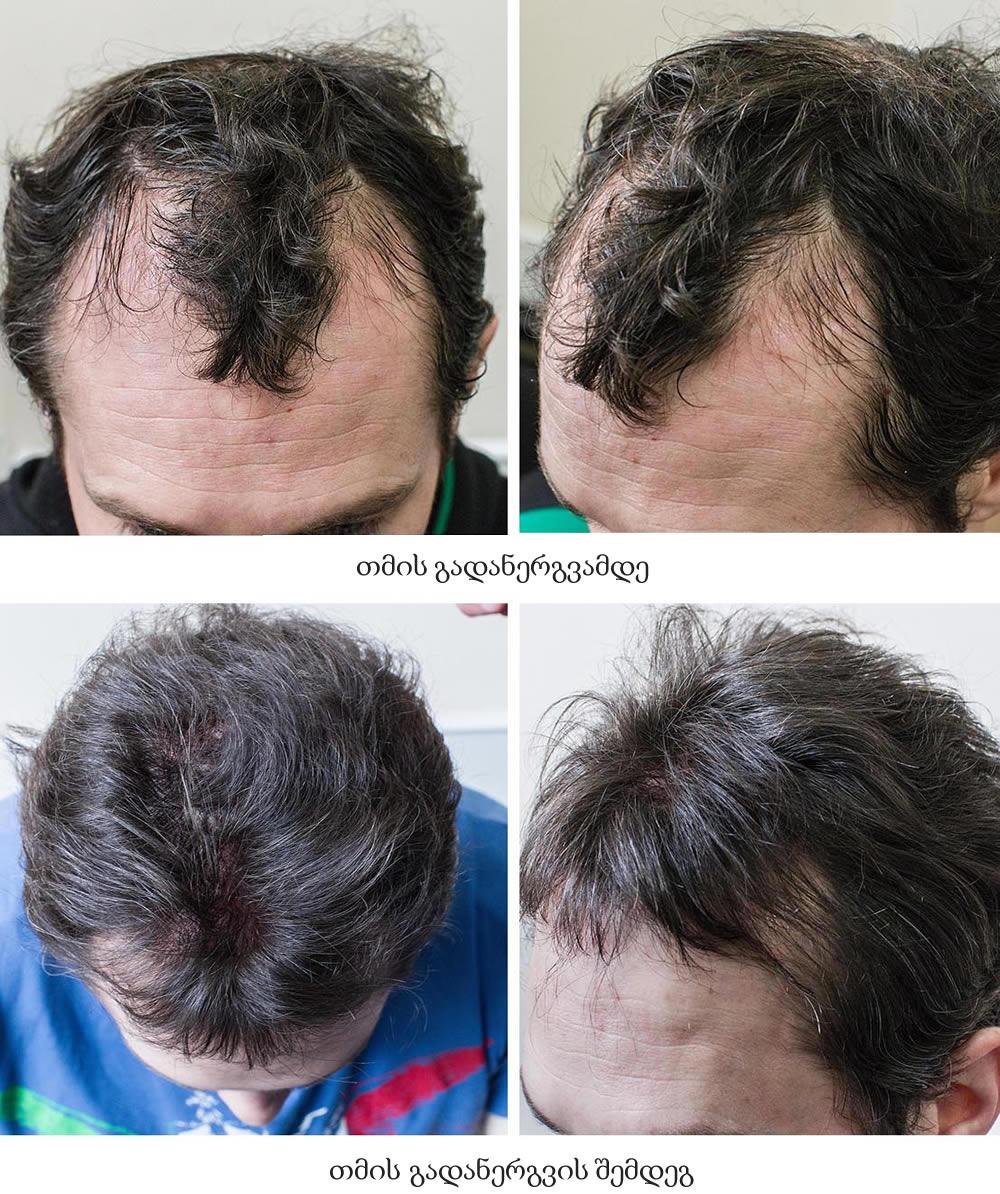 თმის გადანერგვის შედეგები