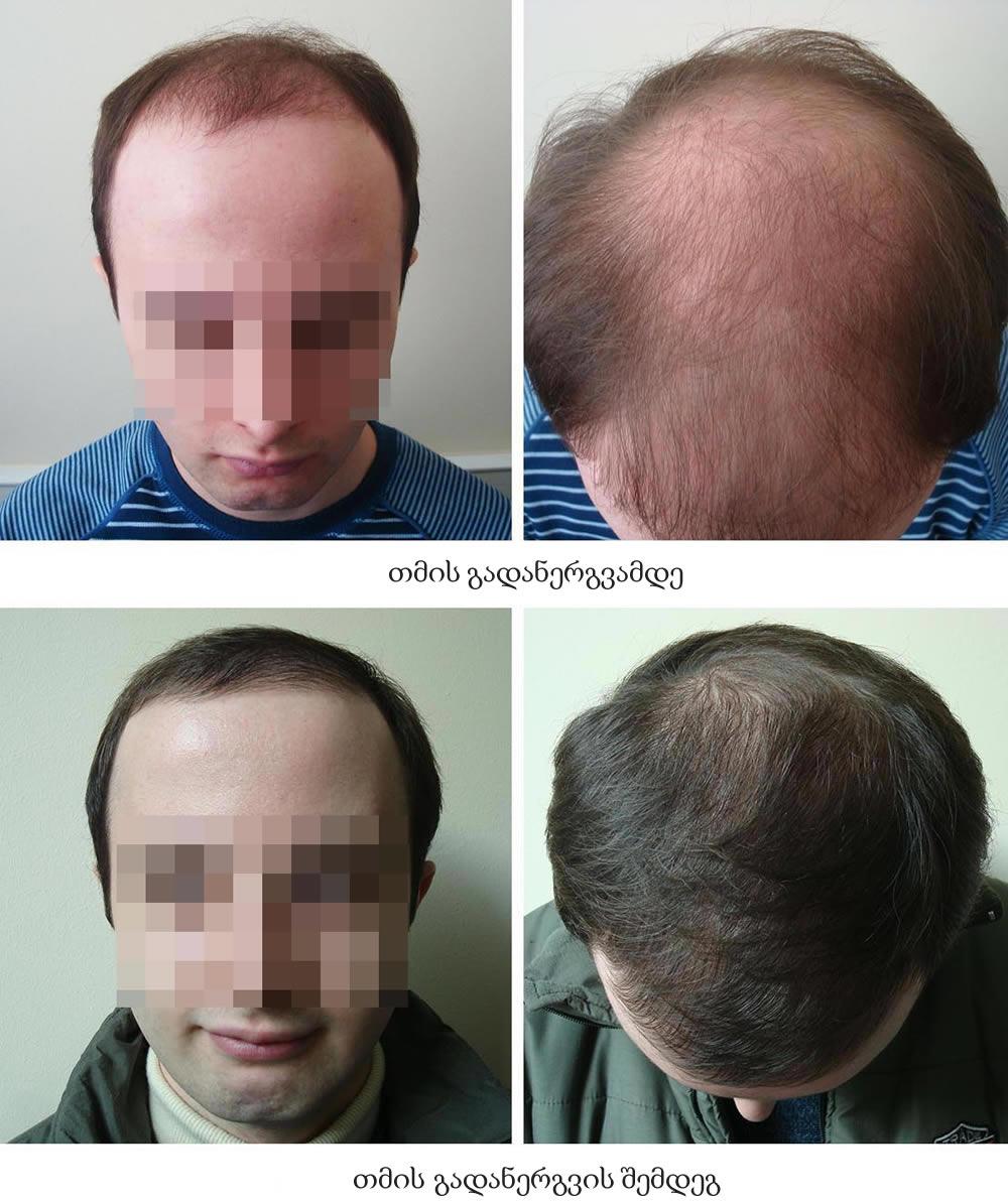 თმის გადანერგვის შედეგი