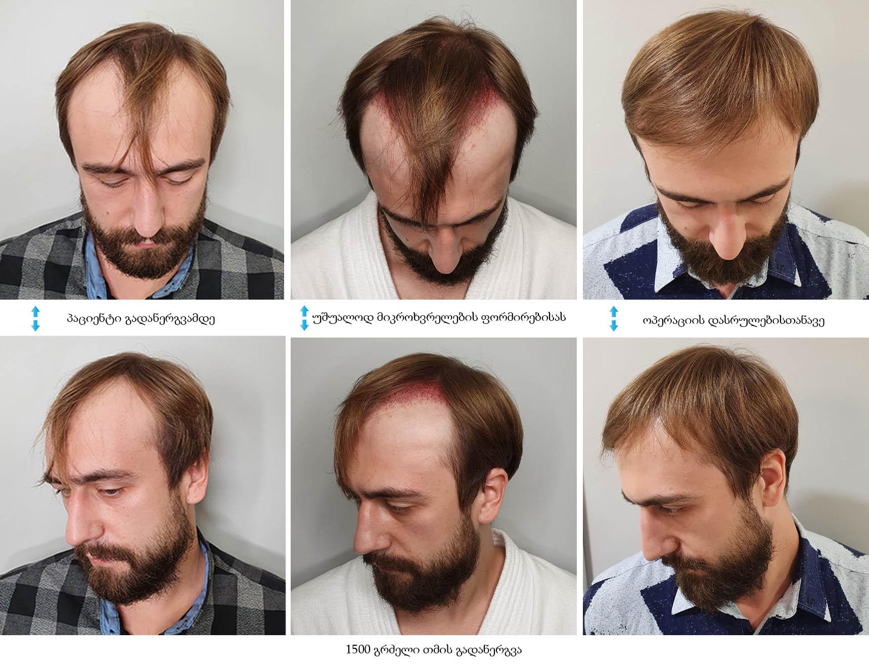 1500 გრძელი თმის გადანერგვა
