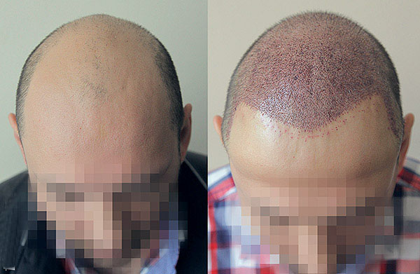 Photo: The patient before and the day after his hair transplant in Talizi
